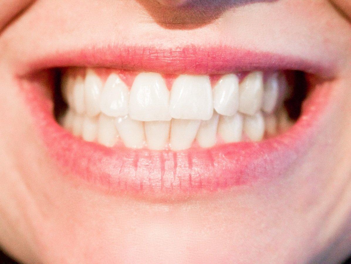 Zbog čega zubi menjaju boju?